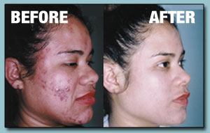 Before and after with ClearFX Skin Microdermabrasion, image 2