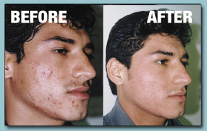 Before and after with ClearFX Skin Microdermabrasion, image 1